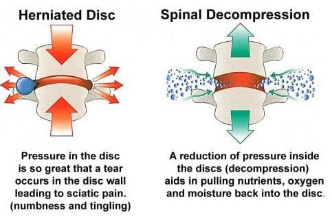 Chiropractic Westerly RI Spinal Decompression